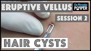 Eruptive Vellus Hair Cysts Session #2 thumbnail
