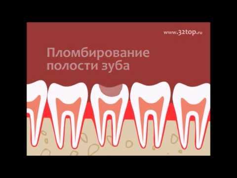Кариес молочных зубов у детей – нужно ли лечить?
