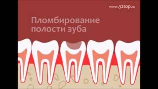 Как лечить кариес зубов. Советы стоматолога. Терапевтическая стоматология(В этом видео мы вам расскажем как лечат кариес и покажем вам на модели. Как всегда с вами Дантист и Стоматол..., 2015-06-09T20:35:31.000Z)