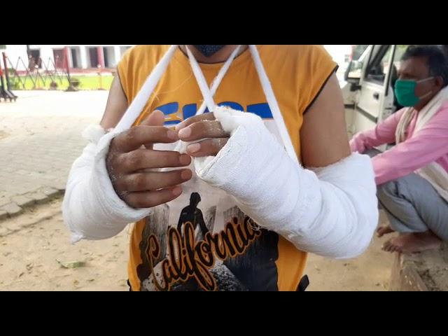 पीलीभीत पुलिस का अमानवीय चेहरा, टूटे हुए हाथ के साथ थाने पहुंचे फरियादी का ही काटा चालान