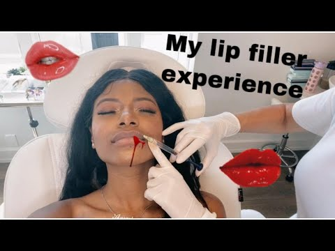 TRYING LIP FILLER FOR THE FIRST TIME   ELLE DIARIES