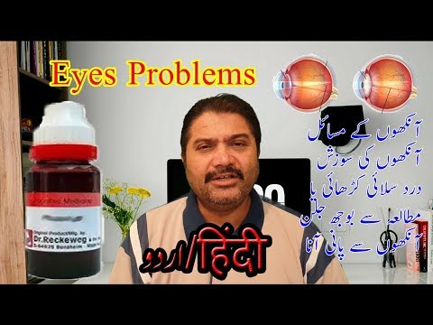 #Eyes Problems And #Solution By Dr Aqeel