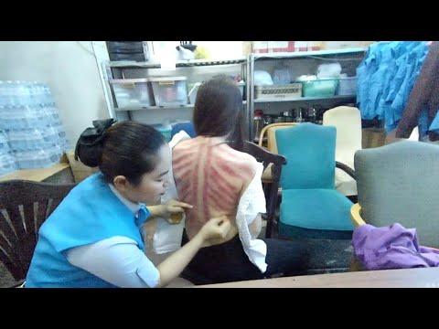 ขูดลม??? อยู่ยังไงในปอยเปต Life in Poipet Ep46 Guasa therapy. Kerokan  កោសខ្យល់ 刮痧