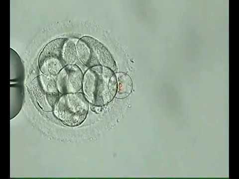 PGSpreimplantation Genetic Screening
