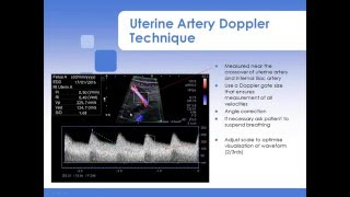 Advanced Fetal Doppler Webinar with Piotr Niznik