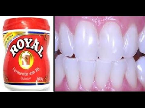 Truque Do Fermento Que Clareia Os Dentes Em 1 Minuto Por Menos De 3