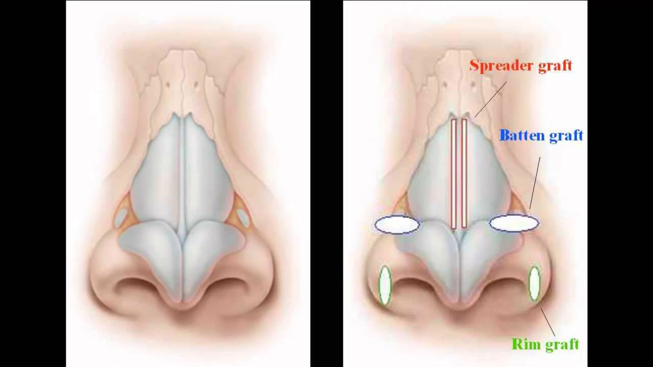 Dr Leventhal-Discussion on Nasal Valve Collapse - YouTube