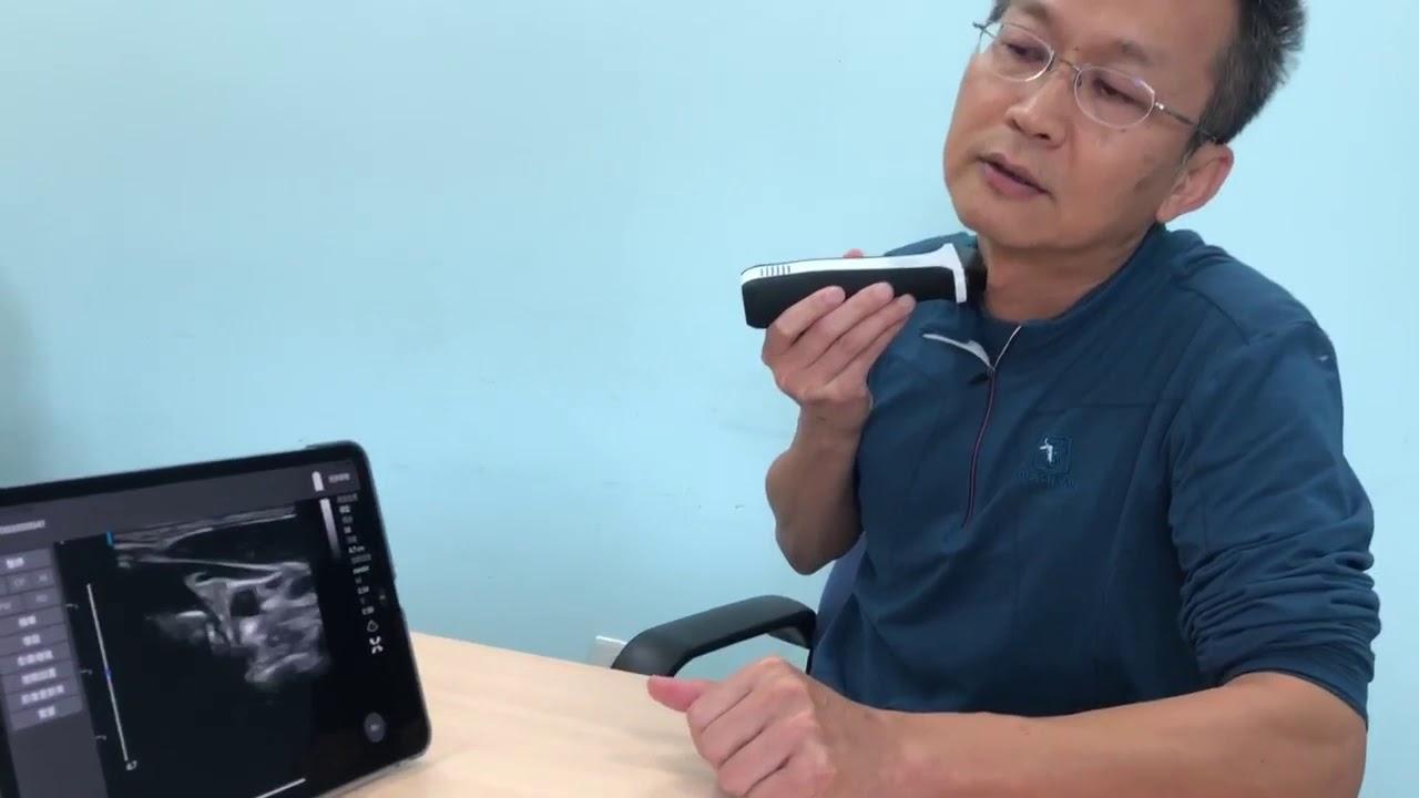 超象科技LeSONO手持式超音波設備與App軟體應用 - YouTube