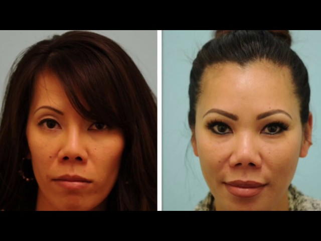 Asian Blepharoplasty, Revision Rhinoplasty, Fat Grafting Testimonial