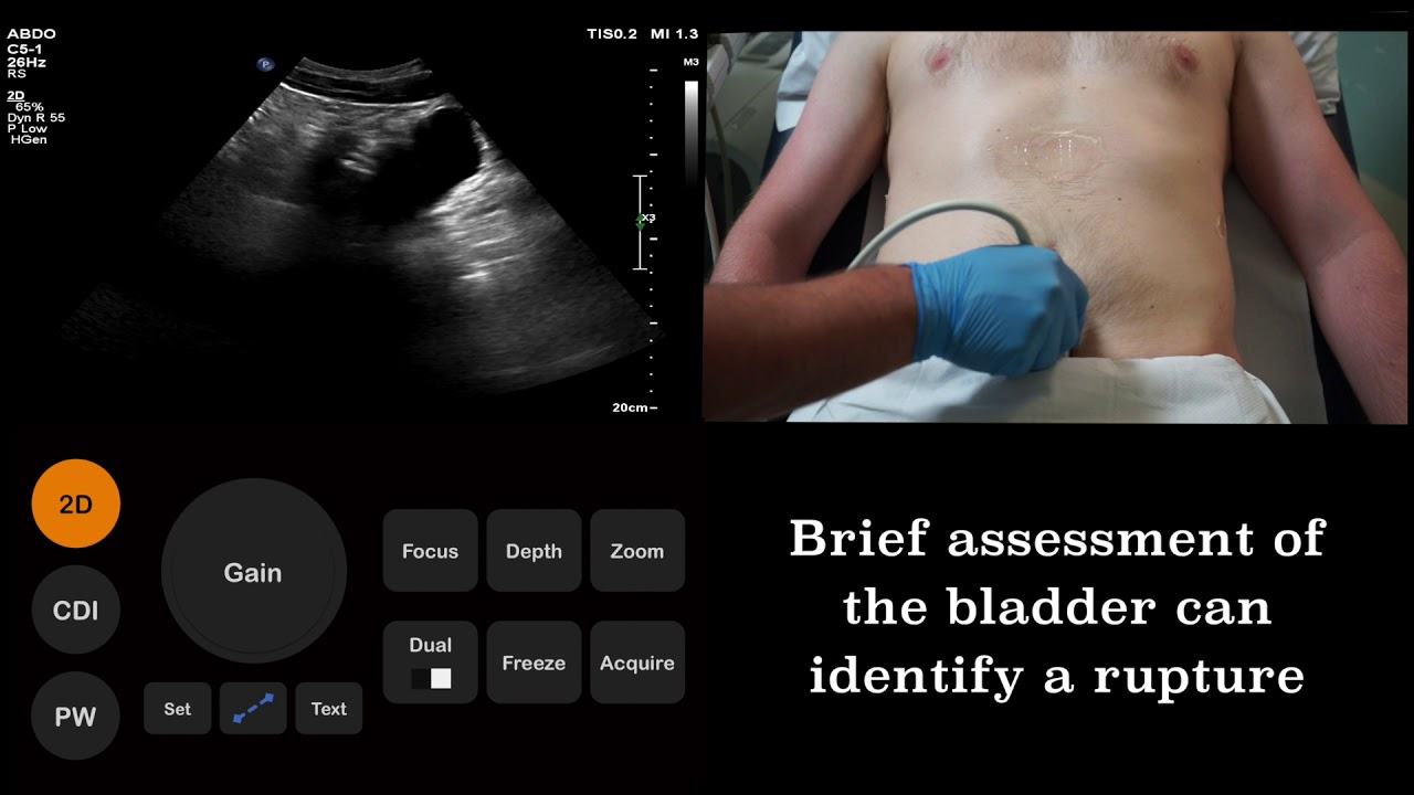 Ultrasound Tutorial: FAST (Focused Assessment with Sonography for Trauma)  scan | Radiology Nation