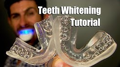 Home Teeth Whitening Tutorial | How To Whiten Your Teeth At Home For Best Results