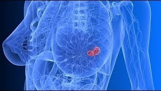 ATTENTION! 5 Warning Signs Of BREAST CANCER That Many Women Ignore ✓