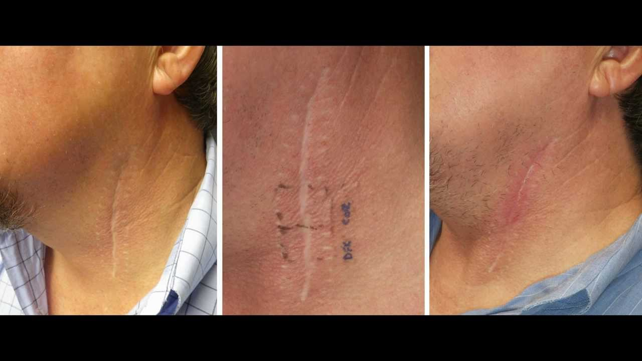 Deep fx co2 laser treatment of neck scar by dr joe niamtu iii deep fx co2 laser treatment of neck scar by dr joe niamtu iii youtube sciox Choice Image
