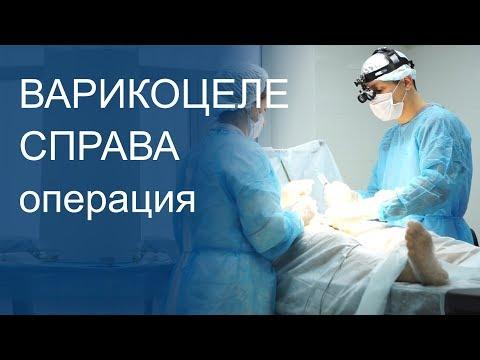 Варикоцеле операция Мармара справа 18+