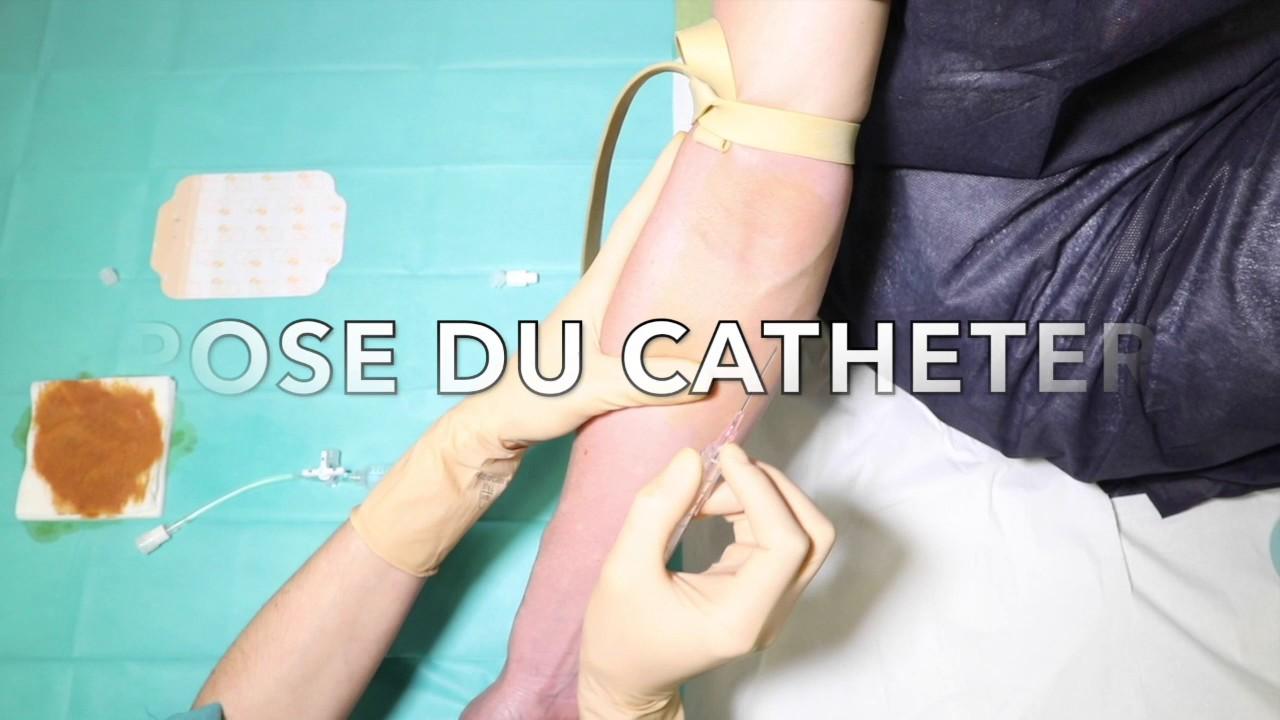 le rinçage pulsé aphm nord urgences adultes - youtube