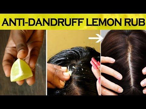 Lemon Rub for Dandruff   Anti Dandruff Lemon Mask Before Hair Wash