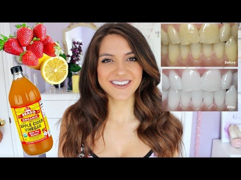How to WHITEN YOUR TEETH   DIY Teeth Whitening FAST + CHEAP!