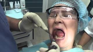 видео удаление зуба