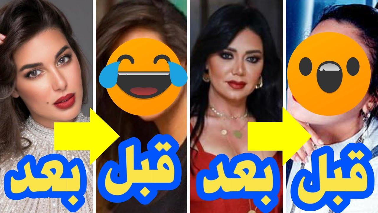 شكل الفنانات العرب قبل وبعد عمليات التجميل .. فضايح
