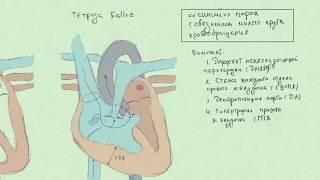 Тетрада Fallot (Фалло). Врожденные пороки сердца.