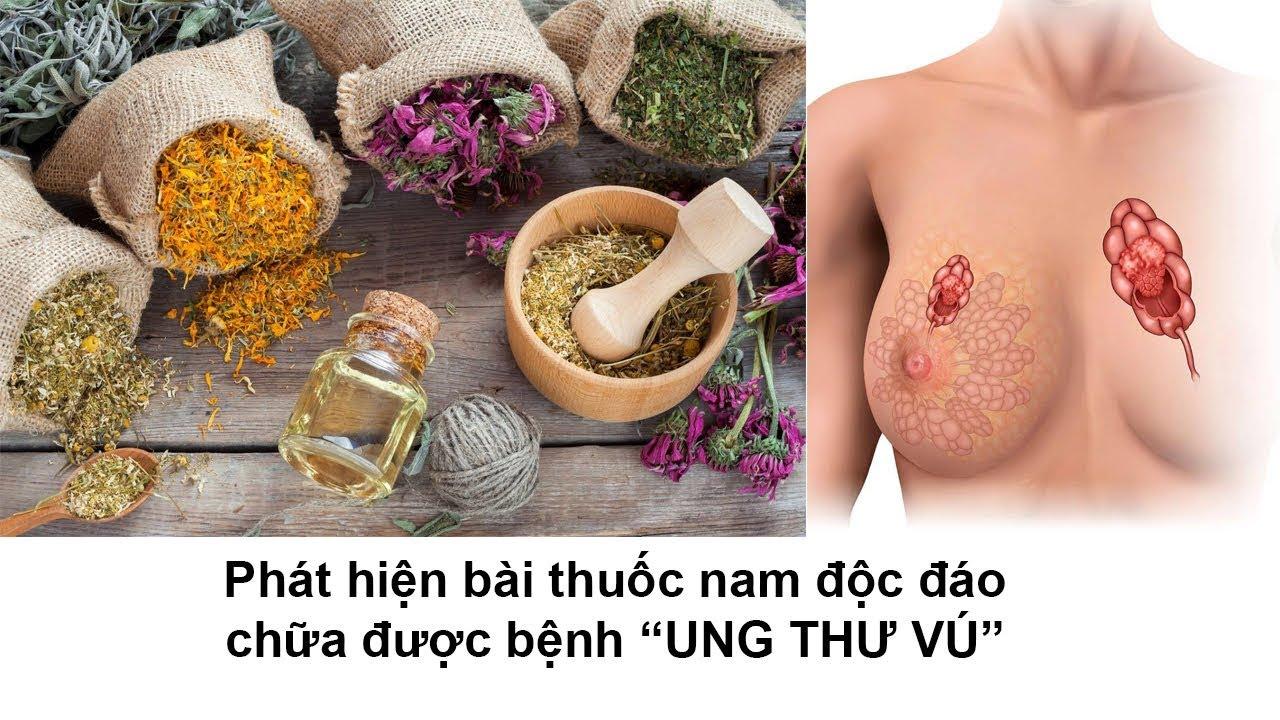 Phát hiện bài thuốc nam độc đáo chữa được bệnh UNG THƯ VÚ