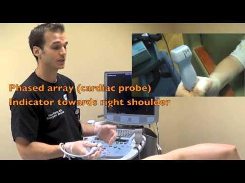 parasternal long cardiac sonography youtube