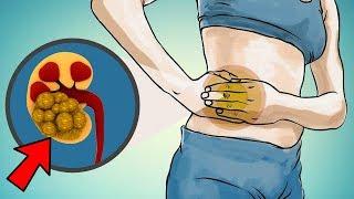 Natural Ways To Beat Kidney Stone