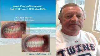 Cancun Cosmetic Dentistry Review by American patient Thumbnail