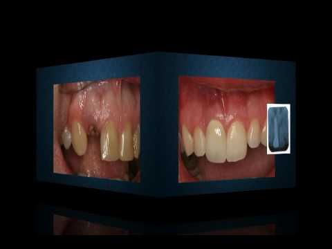 photos of dental implants before and after