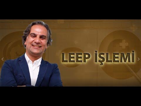 Prof. Dr. Polat Dursun - LEEP İŞLEMİ
