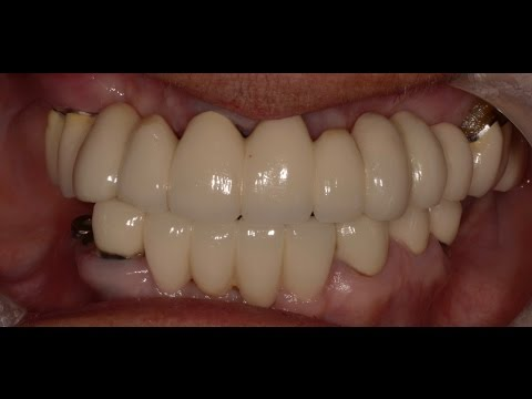 Upper Dental Bridge-Good or Bad?. Find Out