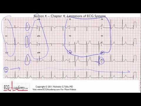 EKG artifacts - wikidoc