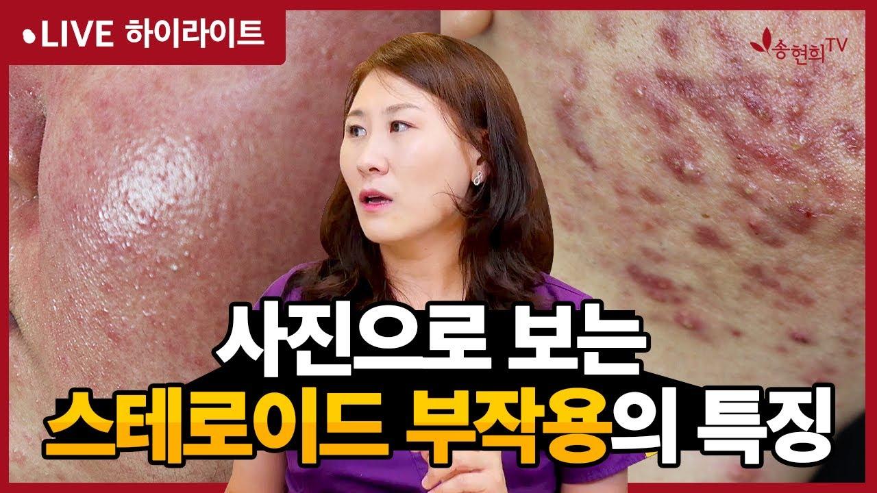 [라방 하이라이트] 스테로이드 부작용의 특징 (모낭염, 여드름, 주사피부염, 접촉성피부염)