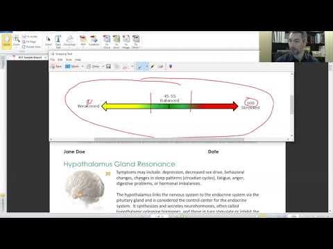 Video 2: Qest4 Sample Report