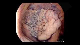 ESD colon II. Disección Endoscópica Submucosa en ciego. ERBEJET Hybrid Knife