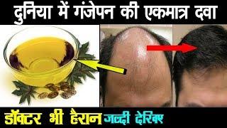 कितना भी पुराना गंजापन हो 7 दिन में बाल उगने शुरू हो जाएँगे Ayurved Samadhan