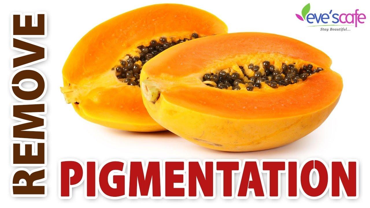 Home Remedies For Melasma Pigmentation