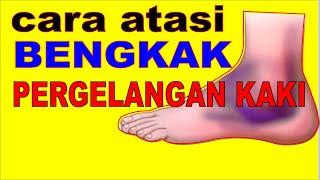 Cara Penguatan Cidera Ankle.