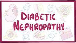 Diabetic Nephropathy- causes, symptoms, diagnosis, treatment, pathology