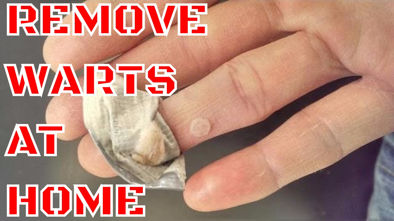 WART REMOVAL  HOW TO REMOVE WARTS AT HOME  YouTube