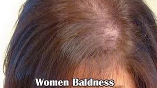 Causes of Baldness-Hair Loss in Young Women