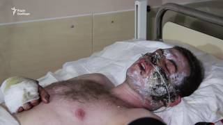Стан потерпілих гірників «Степової» стабільний – лікар львівського шпиталю