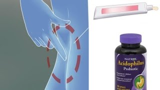 How to Naturally Treat Vaginal Discharge w Acidophilus Pt 3
