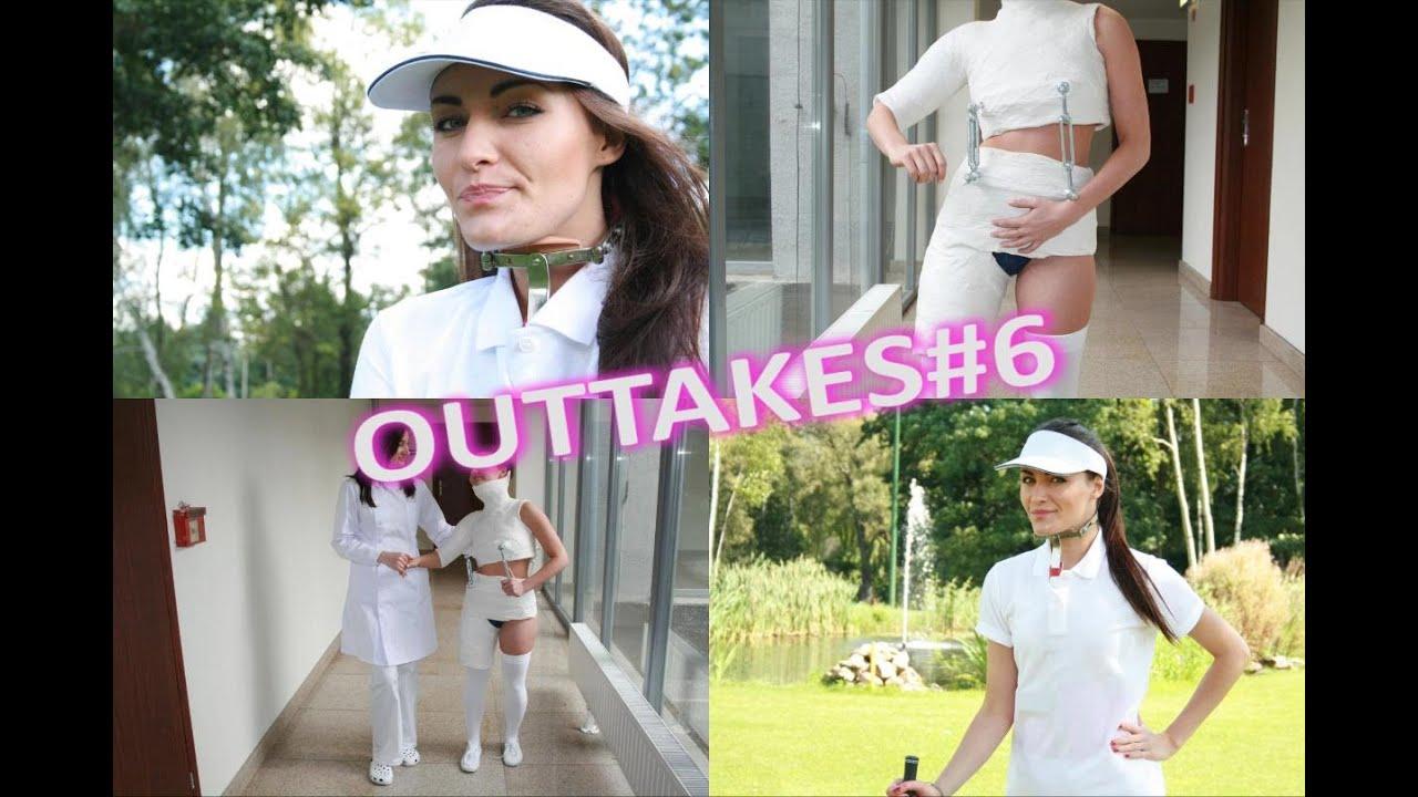 Outtakes#6 - Stagnara hip spica cast and milwaukee brace by BracedLife
