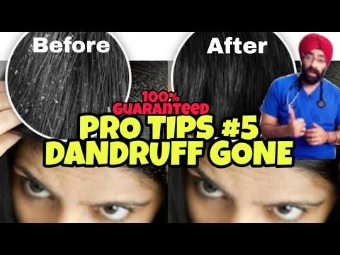 pro-tips-#5:-the-final-dandruff-solution!-isse-hi-jayega-|-dr.education-(hindi)