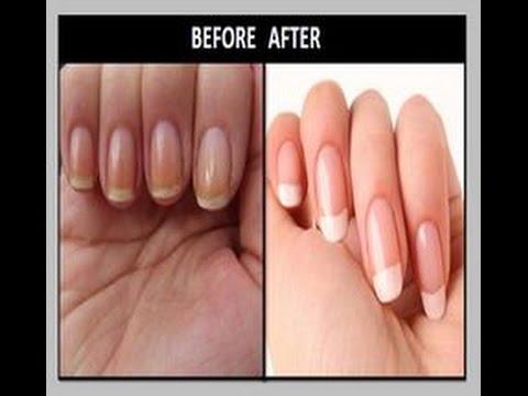 Whiten Your Nails Fast - homemade nail whitener - YouTube