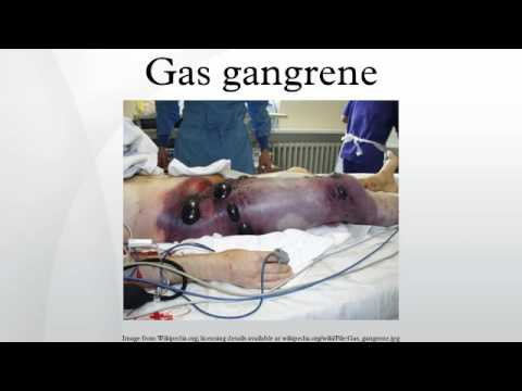 gas gangrene - youtube, Skeleton