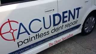 AcuDent Paintless Dent Repair