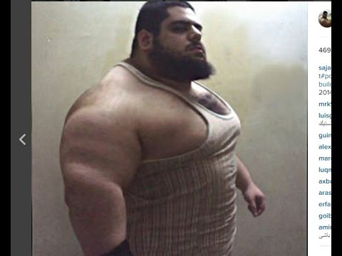 Iranian Hulk ! The Man Who Has No Neck !