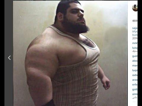 Iranian Hulk ! The Man Who Has No Neck !
